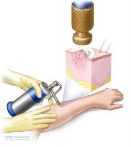 cryotherapy liquid nitrogen 267x300 - همه چیز درباره زگیل تناسلی و 7 مورد از بهترین درمان های خانگی آن