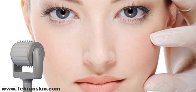 Dermaroller™ Skin Needling treatment - Skin Renewal