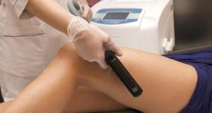 Leg Laser hair removal 300x160 - از سیر تا پیاز لیزر موهای زائد ناحیه تناسلی که کسی به شما نگفته است!