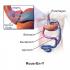 معده برای لاغری 70x70 - جراحی معده در بزرگسالان با چاقی شدید