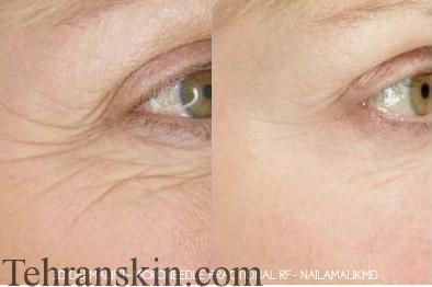جوانسازی اطراف چشمها با روش FMR