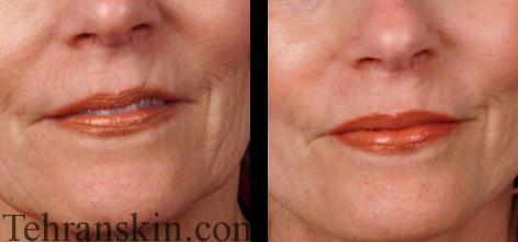 جوانسازی اطراف دهان و صورت با روش FMR
