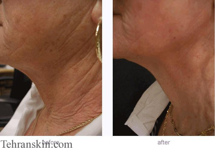 جوانسازی گردن و صورت با روش FMR