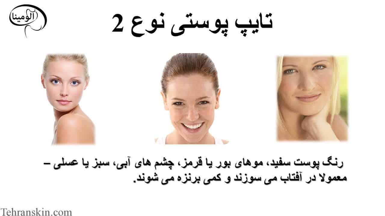 تایپ پوستی نوع 2