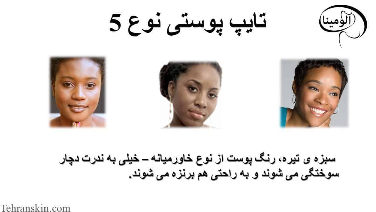 تایپ پوستی نوع 5