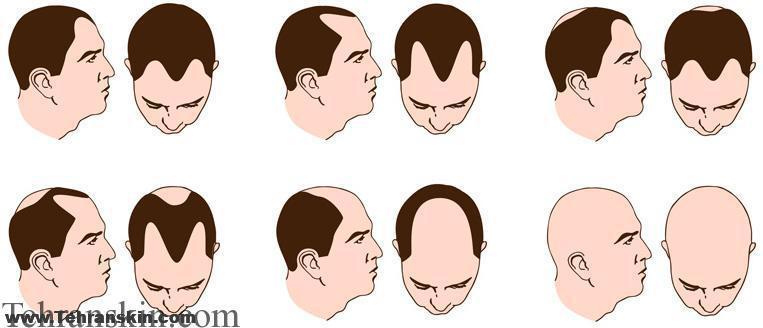 Of Pubic Hair Color Change Dagpress Com