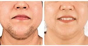 6 300x157 - مراقبت های پوستی لازمه ی  لیزر موهای زائد