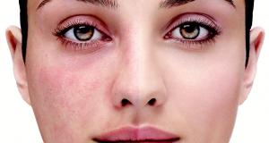 مهمترین لیزر درمان روزاسه