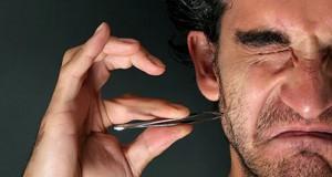 تصویری از موهای زیر پوستی صورت