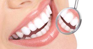 چگونگی سفید کردن دندان ها