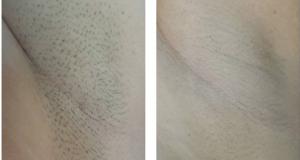 قبل و بعد از لیزر موهای زائد با دستگاه الکساندرایت سنندج