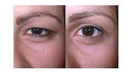 جراحی زیبایی پلک یا بلفاروپلاستی