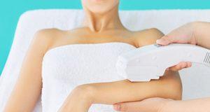 woman laser hair removal arms 300x160 - لیزر موهای زائد و 10 نکته که باید پیش از انجام آن بدانید!