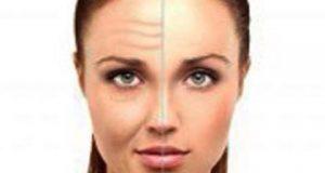 سازی صورت با متدهای جدید 300x160 - لایه بردارهای شیمیایی ،معجزه ای در جوانسازی پوست