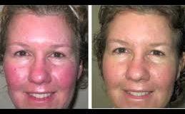 درمان برافروختگی و قرمزی پوست