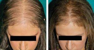 مهمترین علل ریزش مو در خانم ها