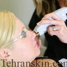 images 3 - لیزر موهای زائد : بهترین مراکز لیزر موهای زائد در کرمان و یزد
