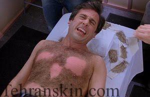 لیزر موهای زائد در مردان