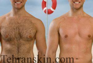 لیزر موهای زائد بدن آقایان