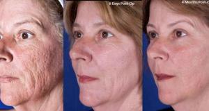 بهترین روش جوانسازی صورت