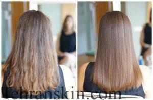 before and after treatment 300x196 - بوتاکس مو بهتر است یا کراتین؟!