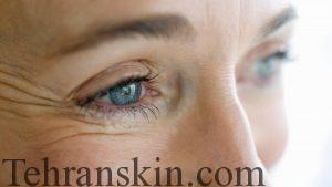 prevent reduce eye wrinkles d98211c23c1b455f 300x169 - درمان های خانگی و لیزر برای رهایی از چین و چروک های زیر چشم + فیلم