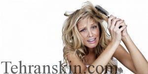 sac%CC%A7 do%CC%88ku%CC%88lmelerine bitkisel c%CC%A7o%CC%88zu%CC%88mler 300x150 - بوتاکس مو بهتر است یا کراتین؟!