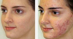 1 14 300x160 - مزایای درمان مشکلات پوستی با لیزر (بخش دوم)