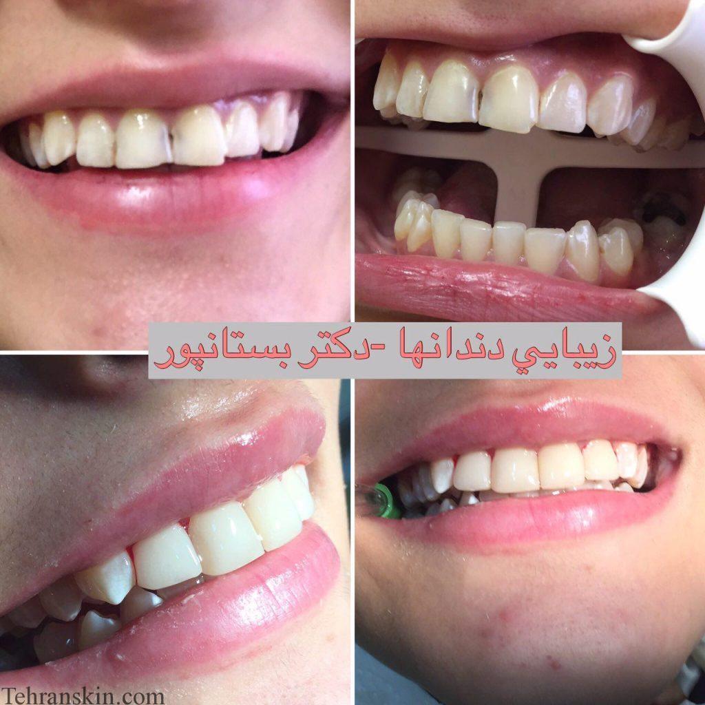 1 4 1024x1024 - معرفی مرکز تخصصی دندانپزشکی دکتر بستانپور در شیراز