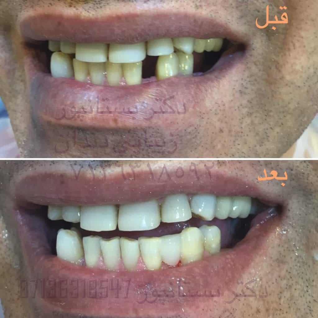 IMG 20180113 113602 903 1 - معرفی مرکز تخصصی دندانپزشکی دکتر بستانپور در شیراز