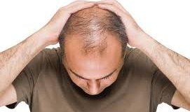 جلوگیری از ریزش موها