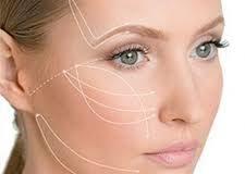 جراحی زیبایی کشیدن صورت