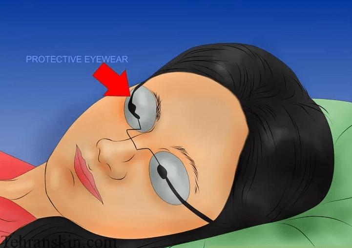 8 3 - اقدامات اولیه جهت انجام لیزر موهای زائد