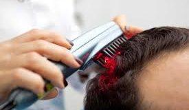 لیزر درمانی کم توان برای ریزش مو