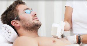لیزر درمانی برای موهای زائد مردان