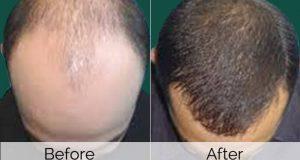 mesotherapy hair 300x160 - بهترین و جدیدترین روش های درمان ریزش مو شدید که تاکنون نشنیده اید (بخش 2)