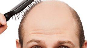 1236915 1437746585 300x160 - روش هایی جهت کاهش روند ریزش مو در مردان