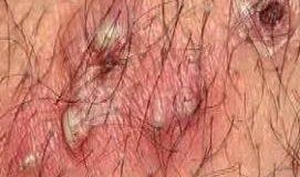 مو های فرو رفته در پوست