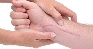 300x160 - اسکار ناشی از جراحی چطور درمان کنیم؟