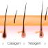 علت رشد موهای زائد پس از لیزر