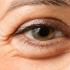 زیر چشم 70x70 - روش هایی برای برطرف کردن پف زیر چشم