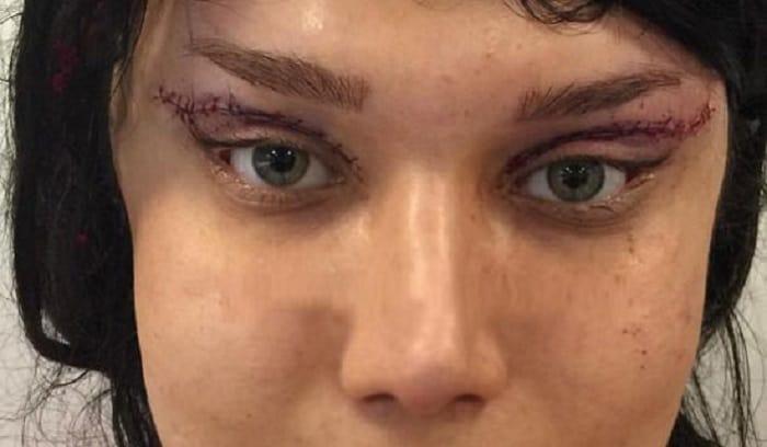 بدترین عوارض جراحی زیبایی