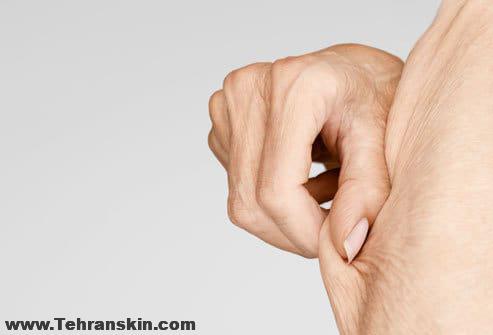 lax sagging skin 1 - مبارزه با چین و چروک پوست بعد از رژیم غذایی