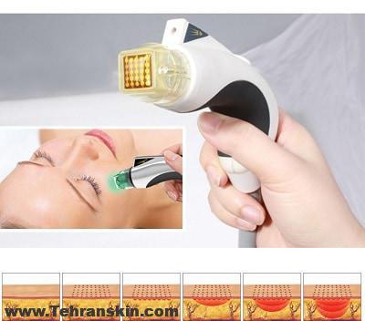 بهترین دستگاه غیرلیزری دستگاه زیبایی و جوانسازی آر.اف فرکشنال رادیوفرکانسی میکرونیدلینگ
