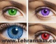 .jpg - لنزهای رنگی دائمی و موقت و هر آنچه باید درباره آن بدانید!