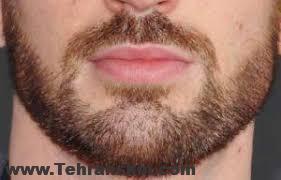سبیل - 10 نکته مهم که باید قبل از کاشت ریش بدانید!