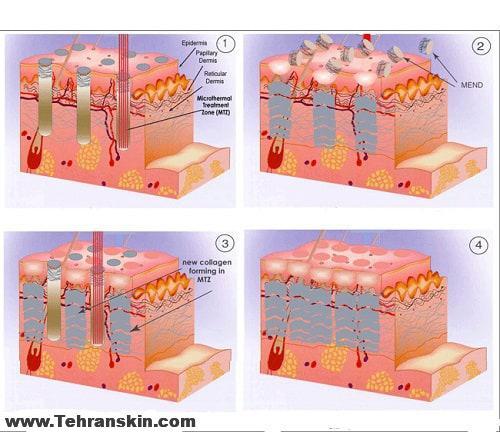 رفع سوختگی با لیزر فرکشنال CO2 در بهترین مرکز سپهر