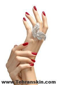 54984bb1b056f   hbz november 2012 beauty hands aging xln 200x300 - تزریق چربی بهترین روش جوانسازی پوست دست