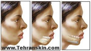 Chin Cheek Augmentation 21 1 300x169 - تزریق چربی :سینه و صورتی خوش فرم تنها در چد دقیقه