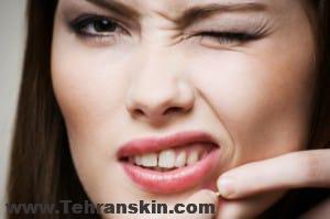 Natural Acne Scars Remedies 300x199 - علائم و دلایل ایجاد آکنه کدامند؟